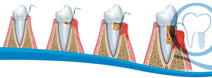 Periodoncia, enfermedad periodental. periodontitis ó piorrea en Sevilla
