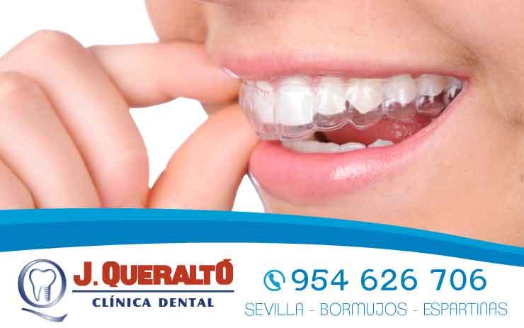 Ortodoncia Invisible en Sevilla