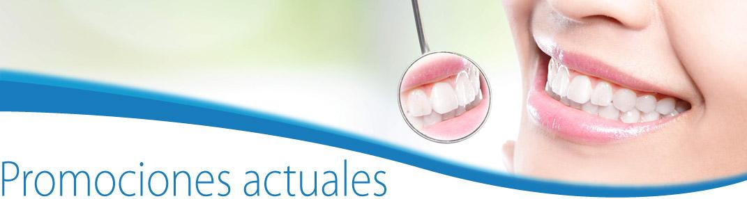 Promociones Clinica Dental en Sevilla