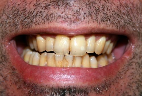 Como tratar los dientes marrones. La decoloración de los dientes