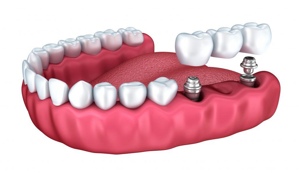 implantes o protesis