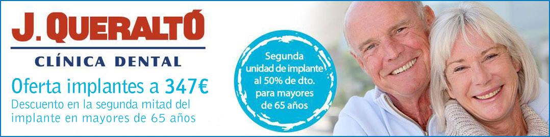 Oferta Implantes dentales en Sevilla