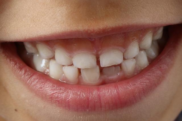 Las caries dentales en los niños