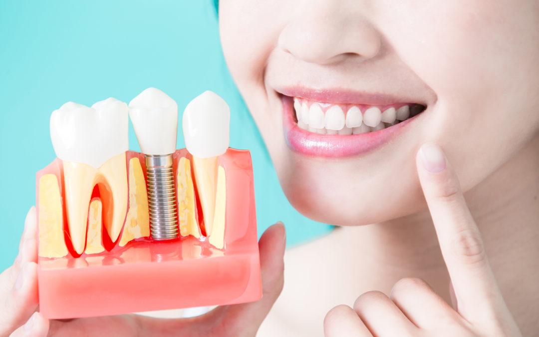 Los implantes dentales arrasan en España