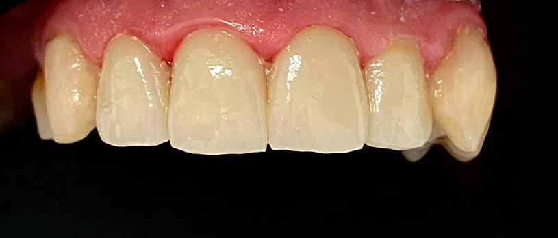 Endodoncia + reconstrucción