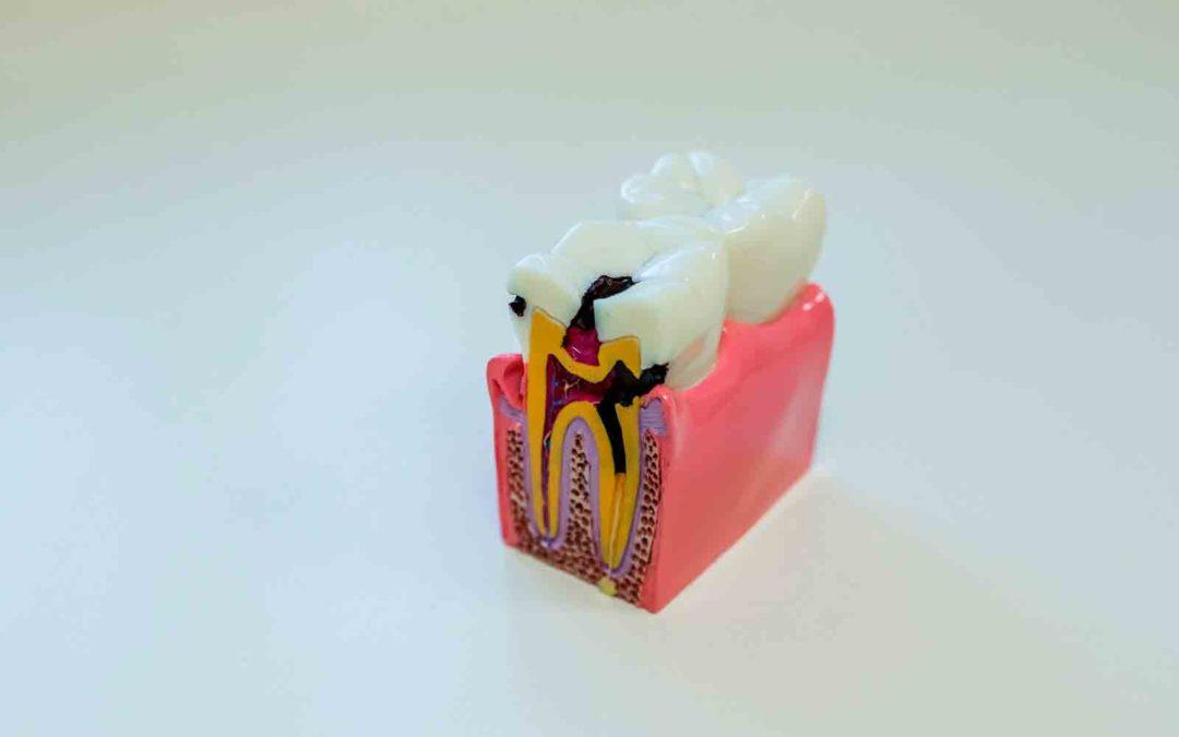 Hábitos alimenticios y su influencia en la aparición de caries dental